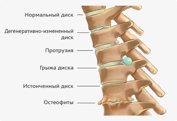 Схема лечения протрузии поясничного отдела