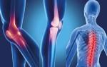 Болезнь Бехтерева или анкилозирующий спондилоартрит