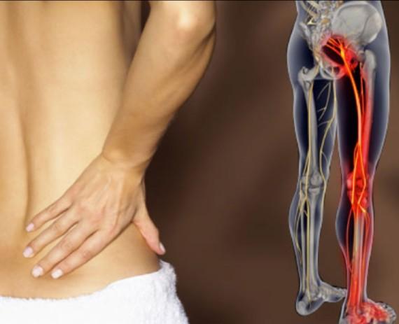 Защемление нерва в пояснице - лечение в домашних условиях упражнения массаж