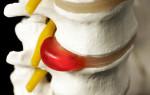 Грыжа позвоночника — симптомы и лечение
