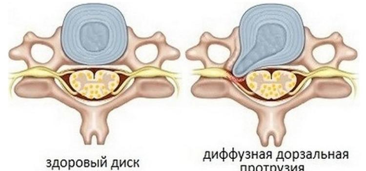 Лечения народными средствами при протрузии диска