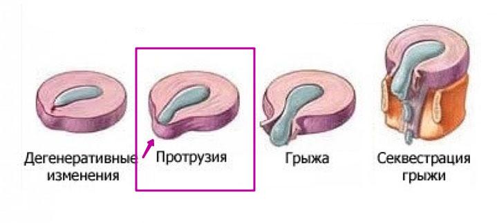 стадии образования межпозвонковой грыжи