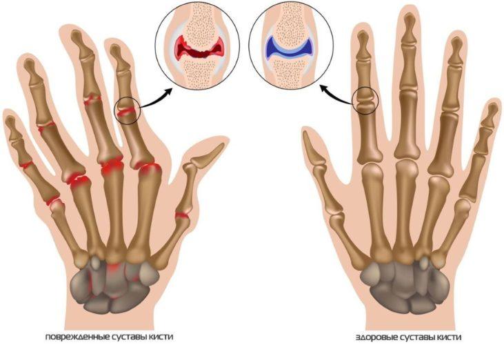 Деформация суставов кисти - анкилоз