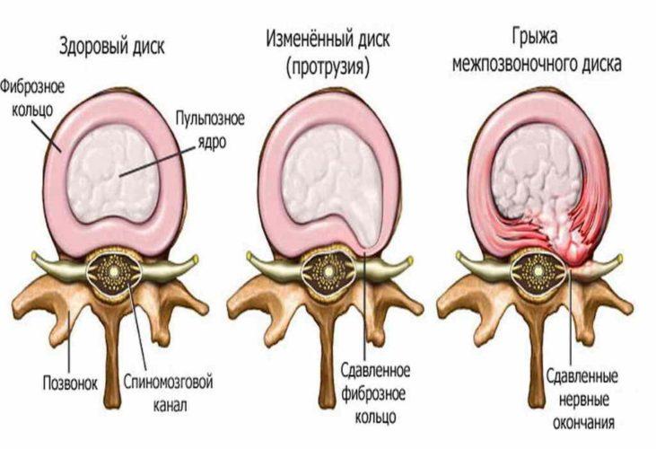 Грыжа межпозвоночного диска шейного отдела