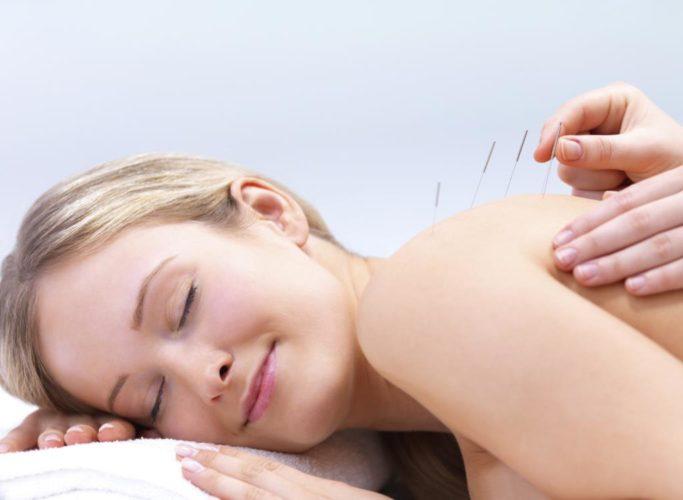 Иглоукалывание при боли в спине