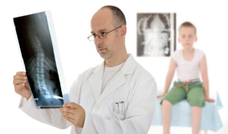 Методы диагностики сколиоза