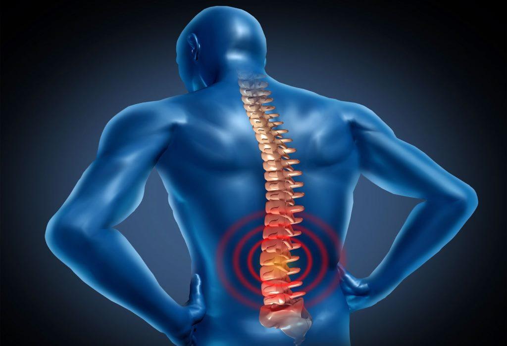 Как лечить в домашних условиях сорванную спину