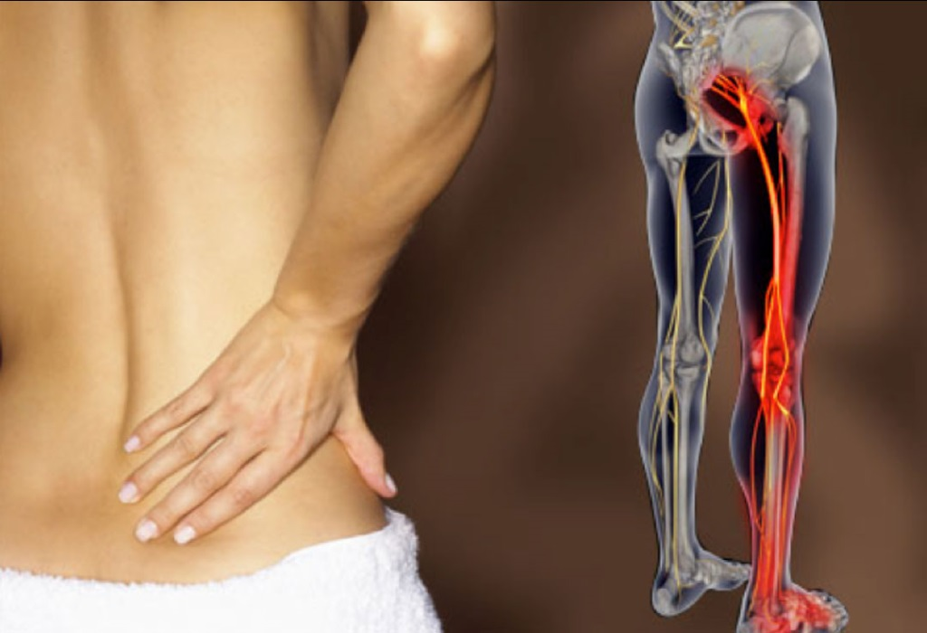 Невралгия седалищного нерва симптомы диагностика и методы лечения