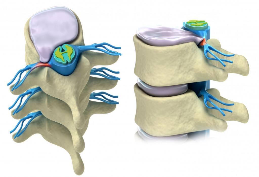 Что такое протрузия в грудине