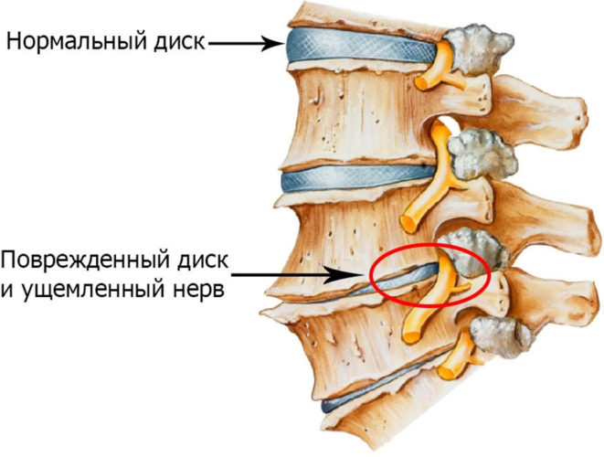 Какие симптомы остеохондроза