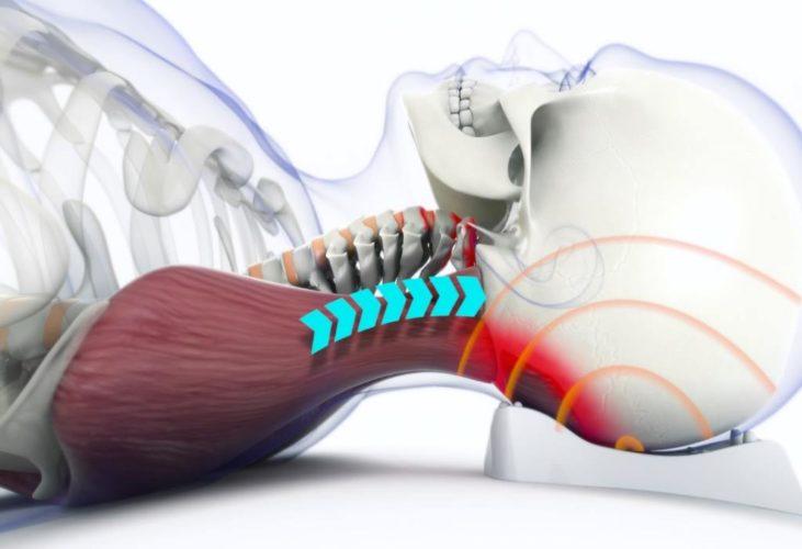 Защемление спинномозговых нервов